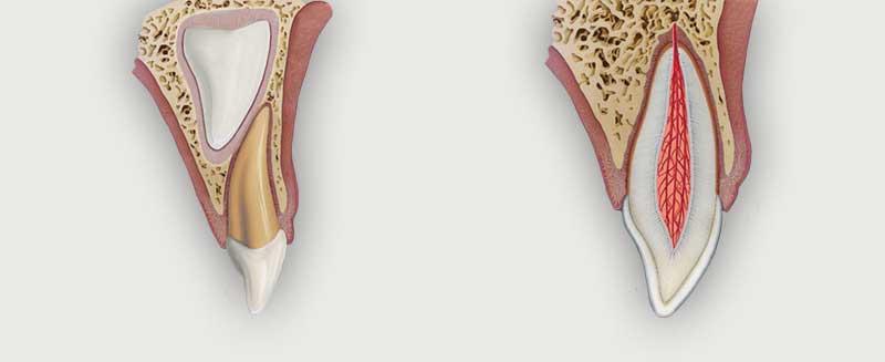 trauma-teeth-injuries