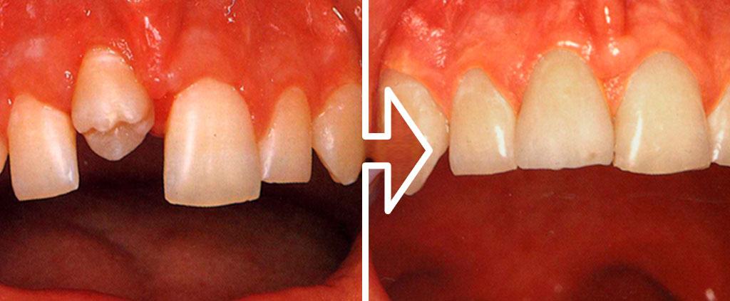 Tooth Autotransplantation Symposium